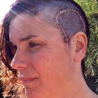 Jeannine Walston post-surgery 2013